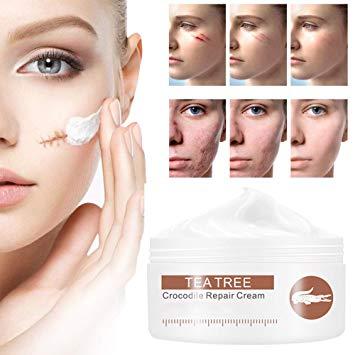 Scar Cream, Gel, Scar Treatment