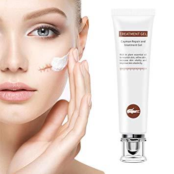 Scar Cream, Scar Gel, Scar Treatment, Scar Repair Cream, Acne Spots Treatment
